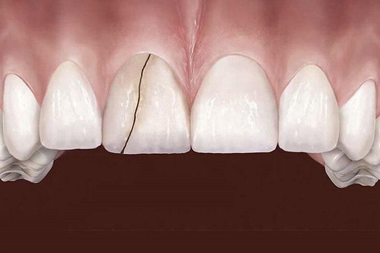 tratamiento-de-dientes-agrietados